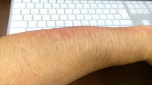 腕が腫れた